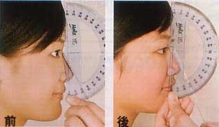 enlarged nose