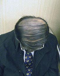 salaryman combover