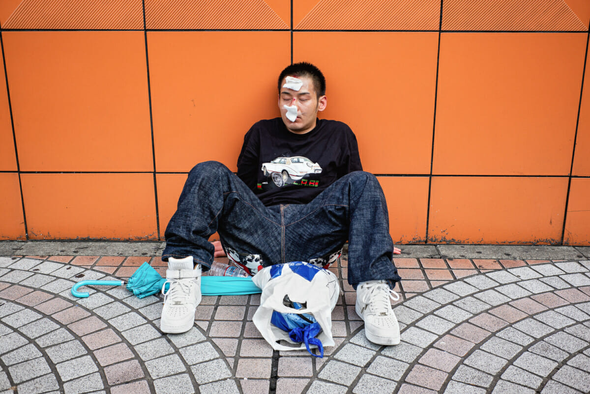 a battered and bruised young Japanese man in Tokyo